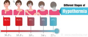 hypothermia stages 300x126 طبقه بندی سرمازدگی hypothermia classification